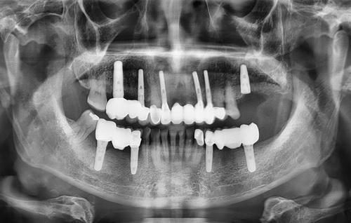 dental-opg-after1