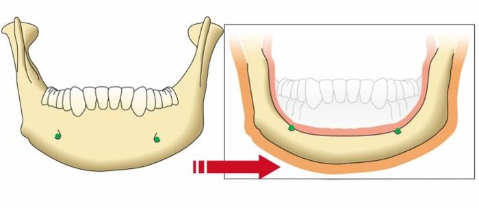 Jawbone Dental Westcoast