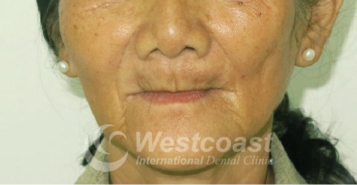 Nguyen Thi Thuan Before Surgery