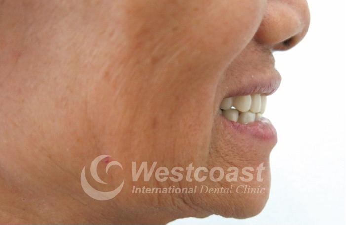 Nguyen Thi Thuan Dental After